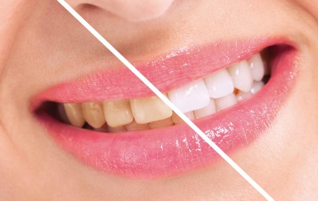 Zähne von Patientin vor und nach Bleaching in Ungarn Zahnklinik