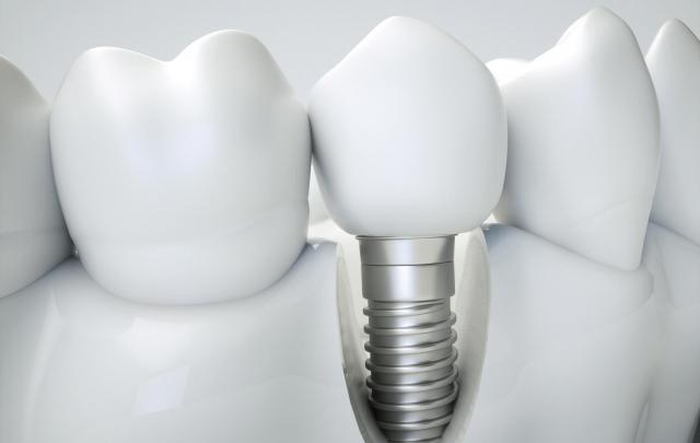 Zahnimplantat mit Zahnkrone neben gesunden Zähnen
