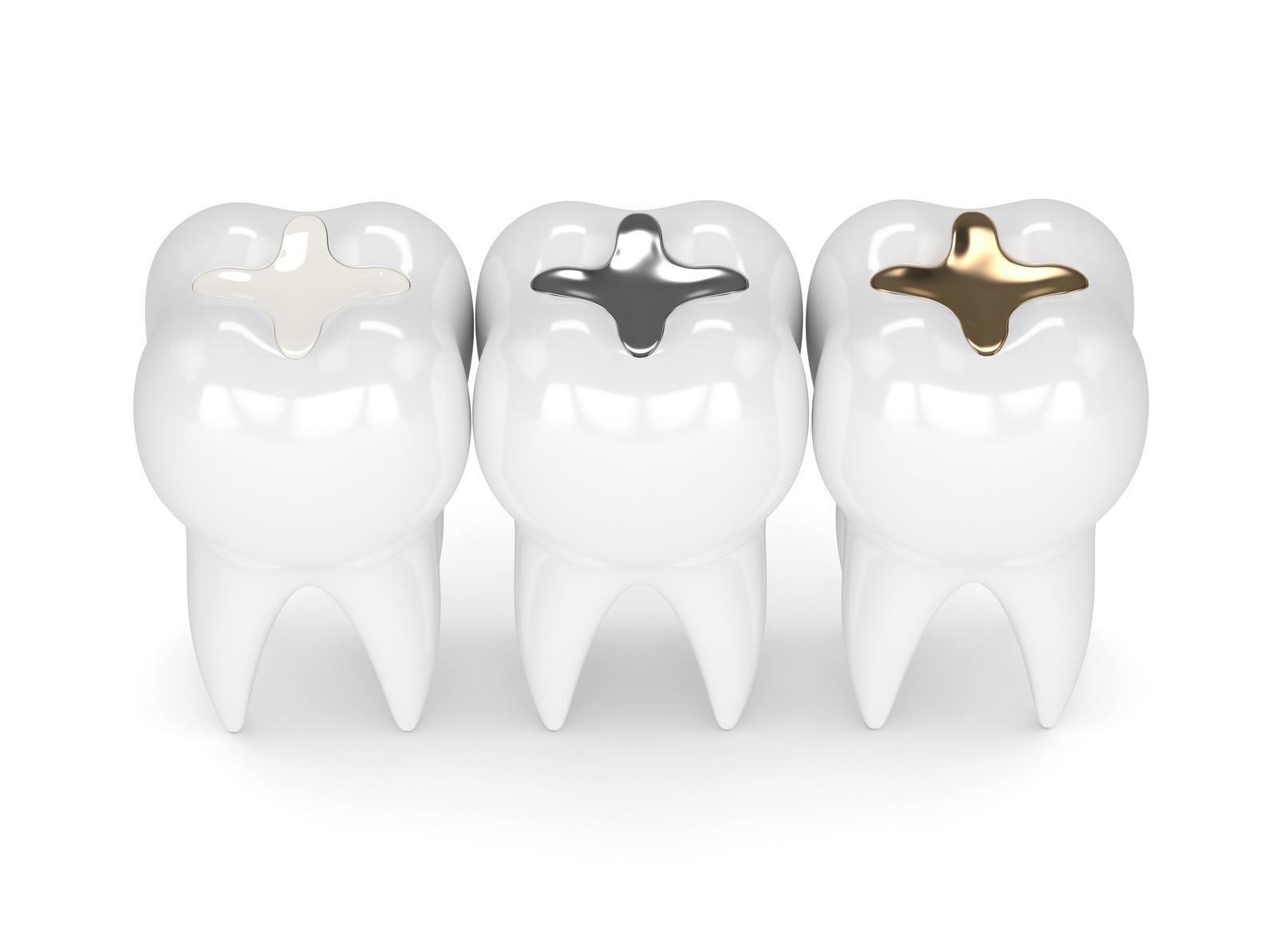 Möglichkeiten für Zahnersatz